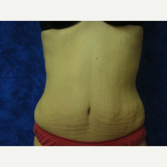 25-34 year old woman treated with Tummy Tuck after 3301326