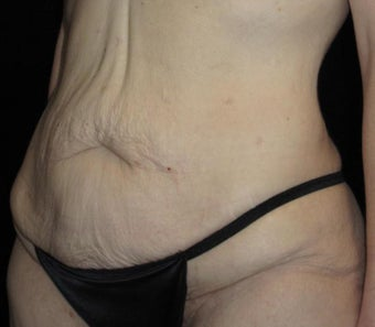 41 year old woman treated with Tummy Tuck 3092771