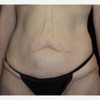 41 year old woman treated with Tummy Tuck before 3092771