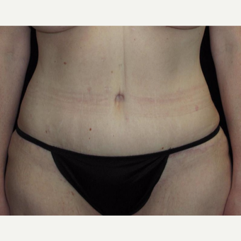 41 year old woman treated with Tummy Tuck after 3092771