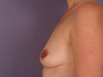 Breast Augmentation before 280123