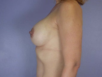 Breast Augmentation after 280123