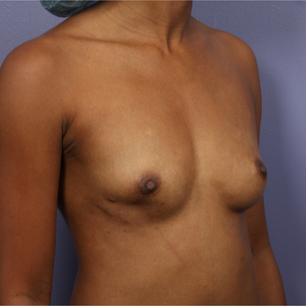 25-34 year old woman treated with Breast Augmentation before 3226373