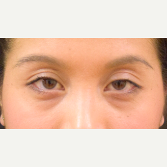 25-34 year old woman treated with Asian Eyelid Surgery before 3305028