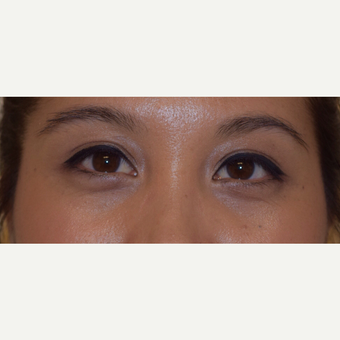 25-34 year old woman treated with Asian Eyelid Surgery after 3305028