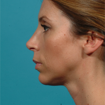 45-54 year old woman treated with Chin Surgery after 2576679