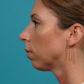 45-54 year old woman treated with Chin Surgery before 2576679