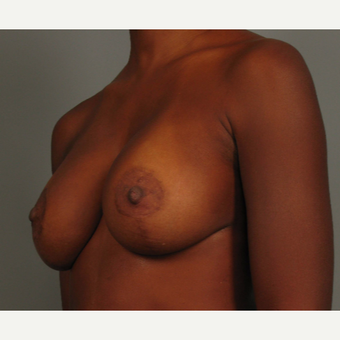 35-44 year old woman treated with Breast Augmentation after 3493286