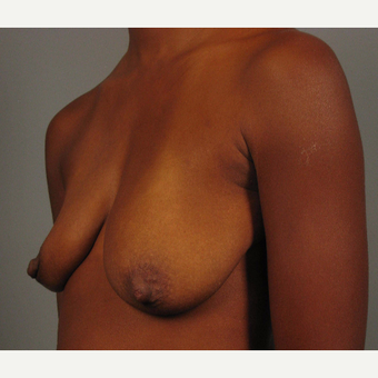 35-44 year old woman treated with Breast Augmentation before 3493286