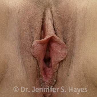 35-44 year old woman treated with Vaginal Rejuvenation before 3459446