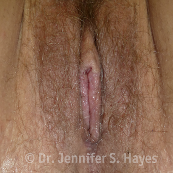 35-44 year old woman treated with Vaginal Rejuvenation after 3459446