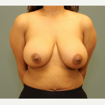 25-34 year old woman treated with Breast Reduction before 3245757