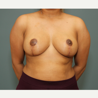 25-34 year old woman treated with Breast Reduction after 3245757