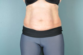 CoolSculpting Treatment to the Abdomen after 1471102