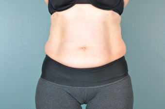 CoolSculpting Treatment to the Abdomen before 1471102