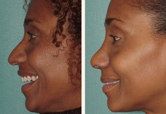 Attractive African American actress in her mid-thirties who felt her nose was larger than her other features after 659596