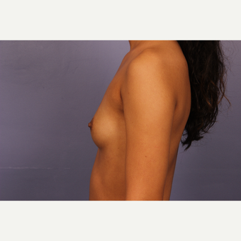 Breast Augmentation with Tear-Drop Shaped Gummy Bear Implants before 3191060