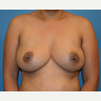 43 year old woman before and after breast reconstruction after 3459552