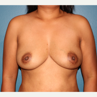 43 year old woman before and after breast reconstruction before 3459552