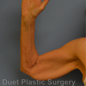 65-74 year old woman treated with Arm Lift before 3349932