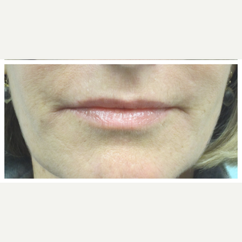 45-54 year old woman treated with Restylane Silk after 3028354