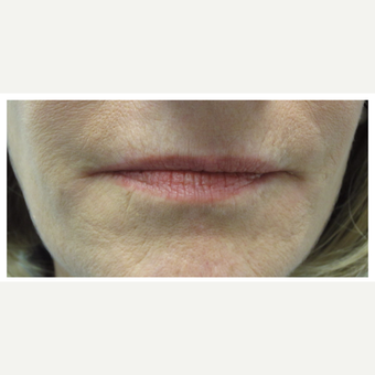 45-54 year old woman treated with Restylane Silk before 3028354