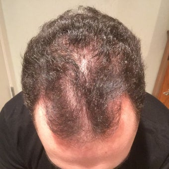 25-34 year old man treated with PRP for Hair Loss Low Laser Light Therapy before 2036302