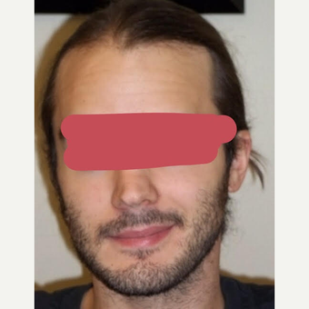 25-34 year old man treated with ARTAS Robotic Hair Transplant before 3689432