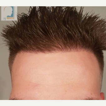 Hairline of 25-34 year-old man treated with FUE Hair Transplant after 3360898