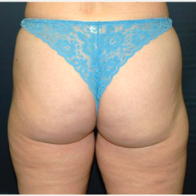 38 year old woman treated with Liposuction after 3721120
