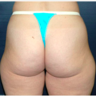 38 year old woman treated with Liposuction before 3721120