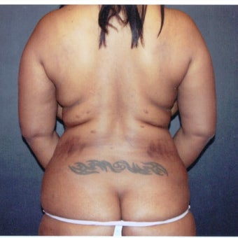 35-44 year old woman treated with Liposuction Revision before 2663479