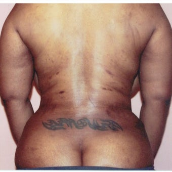 35-44 year old woman treated with Liposuction Revision after 2663479