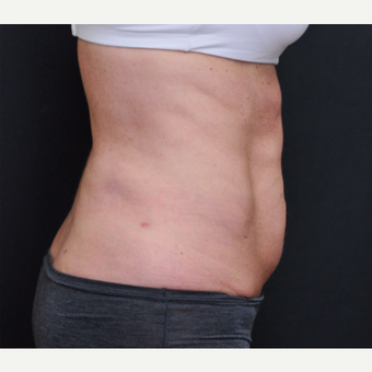 55-64 year old woman treated with Laser Liposuction after 3781088