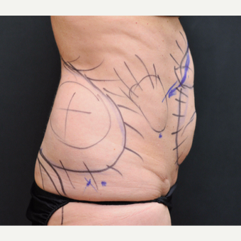 55-64 year old woman treated with Laser Liposuction before 3781088
