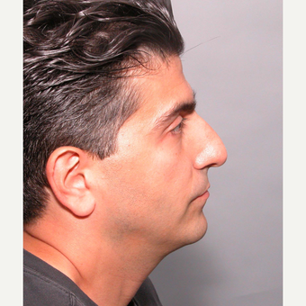 35-44 year old man treated with Rhinoplasty before 3687021