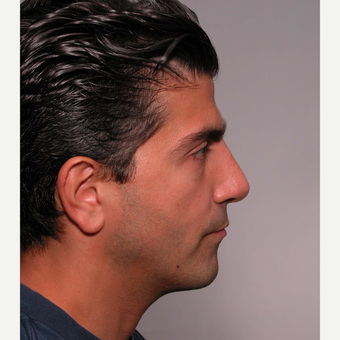 35-44 year old man treated with Rhinoplasty after 3687021