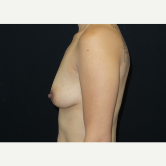 25-34 year old woman treated with Breast Lift with Implants before 3305910