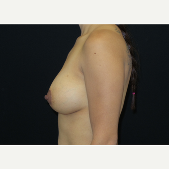 25-34 year old woman treated with Breast Lift with Implants after 3305910