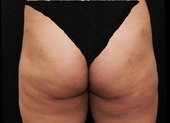 Liposuction Lateral Thigh PAL  after 197948