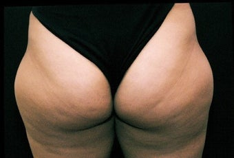 Liposuction Lateral Thigh PAL  before 197948