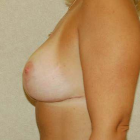 Breast Lift after 2110215