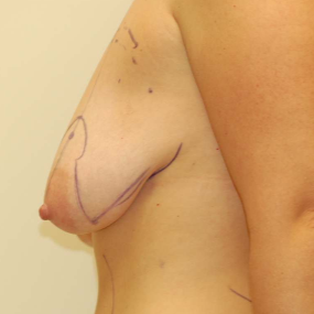 Breast Lift before 2110215