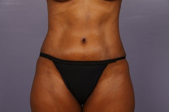 No Drain Tummy Tuck  after 1344835