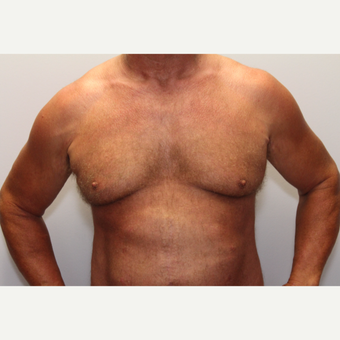 45-54 year old man treated with Male Breast Reduction before 3781618