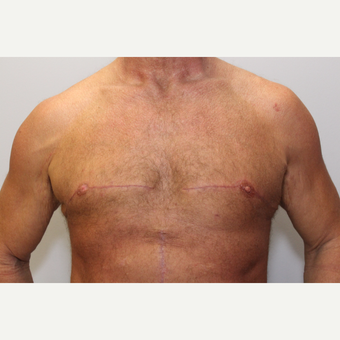 45-54 year old man treated with Male Breast Reduction after 3781618