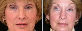 Before and after Traditional CO2 Laser Resurfacing for Wrinkle Removal before 1094089