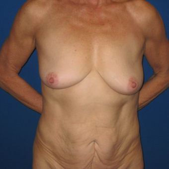65-74 year old woman treated with Mommy Makeover before 3666984