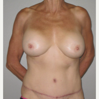 65-74 year old woman treated with Mommy Makeover after 3666984