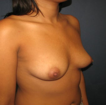 Breast Augmentation, Breast Implants 1114928